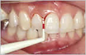 治す 病 に は 歯 周