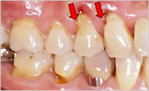 歯茎 下がり 治っ た 歯磨き粉